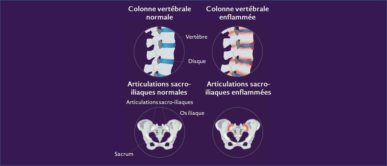 mal de dos - origine inflammatoire
